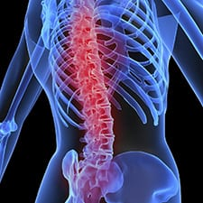back pain, back injury pain relief